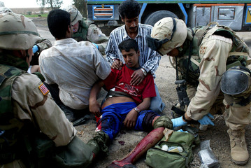 AN INJURED IRAQI BOY RECEIVES MEDICAL ATTENTION AFTER STEPPING ON ANEXPLOSIVE DEVICE IN TAJI.