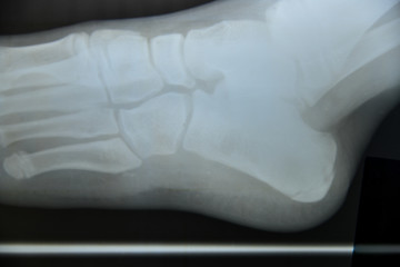 Close up foot bone