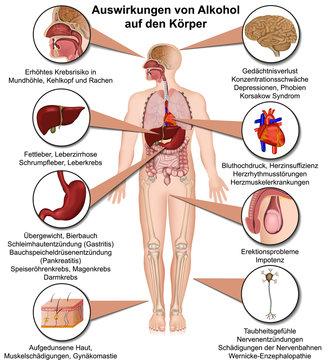 Auswirkungen von Alkohol auf den Körper, Alkoholmissbrauch Infografik