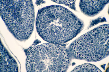 Cross section Human testis under microscope view.