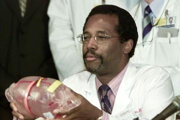 Dr. Ben Carson of Johns Hopkins Children Center holds up model of twins skull.
