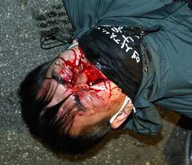 INJURED WORKER LIES ON A STREET AT A PROTEST IN SEOUL.