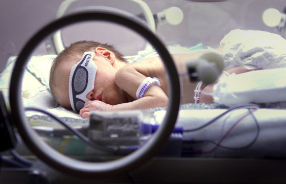 A premature baby wears an eye shade as she undergoes light therapy to treat jaundice at a hospital in Winnipeg