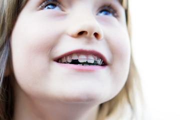 Glückliches Kind mit Zahnspange
