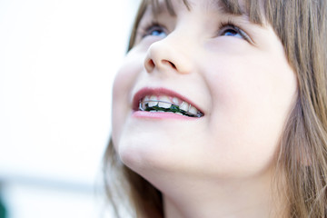 Schönere Zähne durch Korrektur per Zahnspange