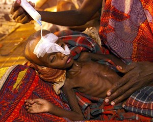 A starving child is fed through a tube at a temporary feeding center in the town of Gode south west ..