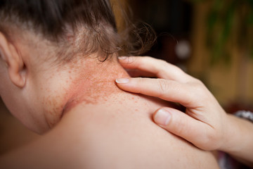 Woman hands lubricate damaged skin on the back by healing ointment