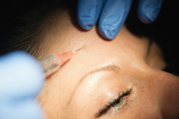 Beautification with botox