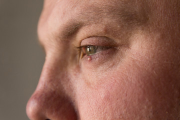 Big pimple on the skin of the lower eyelid on the man's face.