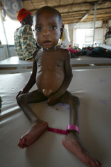 Malnourished child awaits treatment at emergency feeding centre at town of Maradi in Niger.
