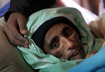 Kashmiri earthquake survivor Naqsha Bibi lies in a bed in a field hospital in Muzaffarabad in Pakist..