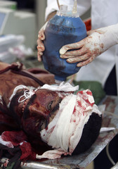 A doctor tries to revive a victim after a roadside bomb attack in Baghdad