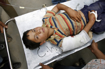 A young Kashmiri victim of a grenade explosion lies on a stretcher outside a hospital in Srinagar