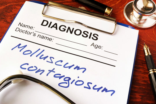 Molluscum contagiosum (MC) written in a document on a table.