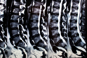 Magnetic resonance with two vertebrae abnormalities. Backbone MRI Magnetic resonance imaging for back pain protrusion