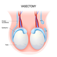 Vasectomy. Open-ended method and ligating (suturing).