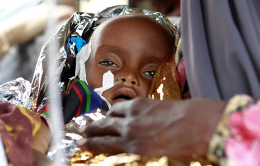 Severely malnourished refugee girl from Madaitu Village in Somalia, is wrapped in foil at MSF clinic at UNHCR transit center in Dolo Ado near Ethiopia-Somalia border