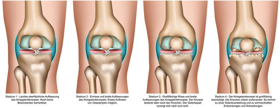 Kniearthrose, Stadien bei Arthrose im Knie, vektor illustration