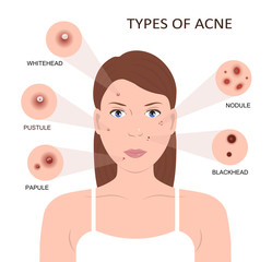 Types of acne. Woman with Pimples