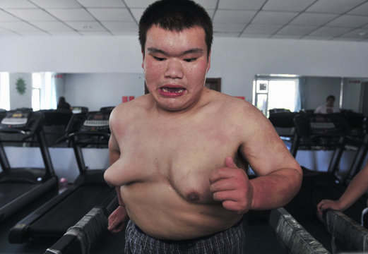 A patient exercises on a treadmill at a weight loss centre in Changchun, Jilin province in northeastern China