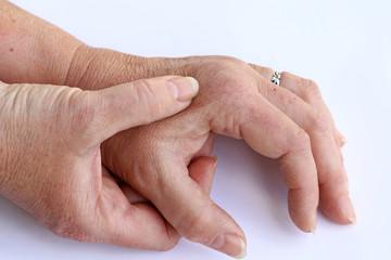 Schmerzende Hände und trockene Haut