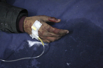 A man injured from the site of an explosion is treated at the Lady Reading hospital in Peshawar