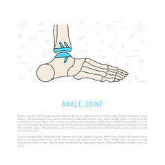 Treatment and prosthetics to the ankle and his replacement, vector illustration isolated on white background