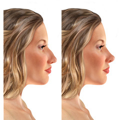 comparative portrait of a 3d young woman before and after rhinoplasty