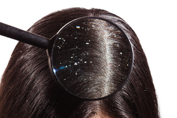 The doctor looks through a magnifying glass at the dandruff on dark female hair