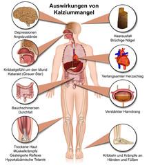 Auswirkungen von Kalziummangel auf den Menschen
