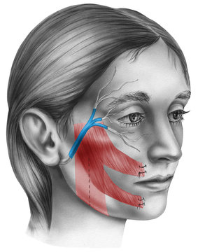 Surgery to restore movement in patients with facial paralysis caused by nerve damage.