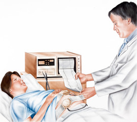 Pregnancy - Fetal Monitoring allowing continuous evaluation of a fetus. Monitoring can give early warning of fetal distress, and precise management of labor...
