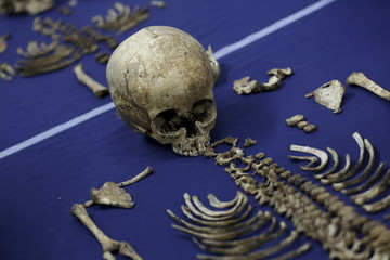 A skeleton of a victim of the domestic armed conflict in Guatemala is displayed on a table as a demonstation during a presentation of a program to identify dead Guatemalan immigrants in Mexico and U.S., in Guatemala City