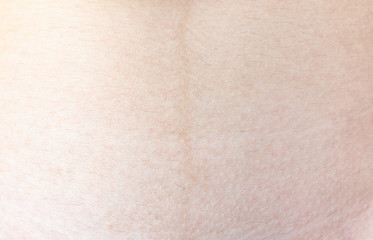 Texture of human skin(caucasian woman). Extreme close up macro shot