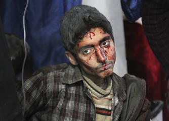 An injured civilian waits to receive medical assistance after what activists said were airstrikes by forces loyal to Syria's President Assad in Douma