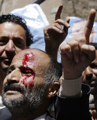 Government backers shout slogans after a fellow activist was injured in clashes with anti-government protesters in Sanaa