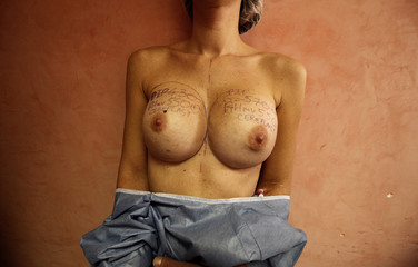 The torso of a patient with notation lines on her breasts is seen before her operation in a clinic of Nice