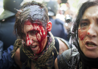 Injured protester is detained by riot police during clashes at the end of a march by Spanish coal miners in Madrid
