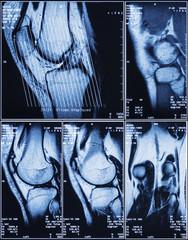 Human Knee MRI for Medical Diagnosis