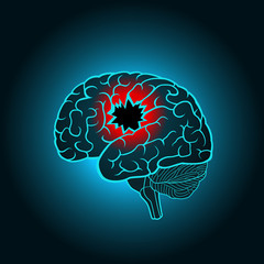 A brain with a hole, the concept of destruction of the brain, memory, stroke, injury