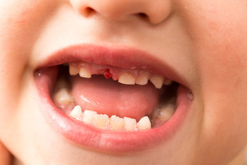 The mouth of a boy without a tooth