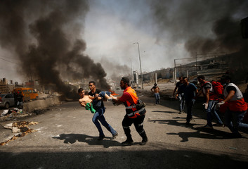 Wounded Palestinian protester is evacuated during clashes at a protest in support of Palestinian prisoners on hunger strike in Israeli jails, near Qalandiya checkpoint near the West Bank city of Ramallah