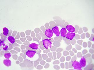 Leukemia cells in blood smear, analyze by microscope