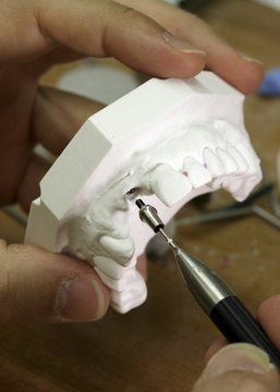 Porcelain denture maker Piskin demonstrates the adjustment of a Nobel Biocare aesthetic abutment on a moulding in his laboratory in Lausanne