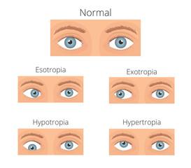 Crossed eyes vector illusration. Types of crossed eyes