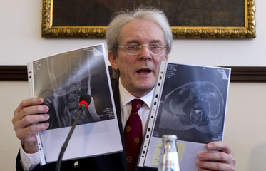 Einhaeupl of Charite hospital shows two magnetic resonance tomography images of spine of former Ukrainian prime minister Tymoshenko during news conference in Berlin