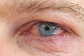 Eye infection / Infection of an eyelid on an eye with contact lens