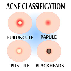 Types of Acne and Pimples,