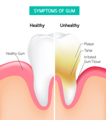 Dental problem health care. Comparison of Healthy and unhealthy tooth hygiene. dental care infographic. symptoms of gum with plaque and tartar. Illustration on white background.