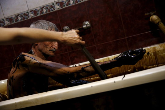 A man gets his arms cleaned of crude oil as he lies in a bathtub during a health therapy session at Naftalan Health Center in Baku